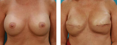 post breast augmentation procedure