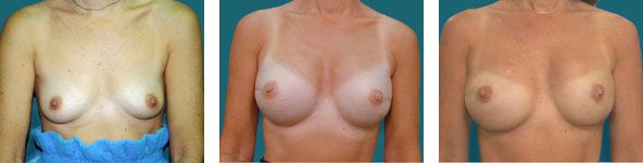 no scar breast reconstruction