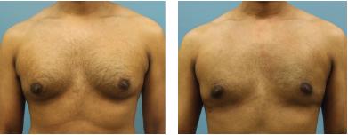4-Male-breast-reduction-atlanta-alpharetta-georgia-ga