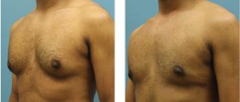 5-Male-breast-reduction-atlanta-alpharetta-georgia-ga