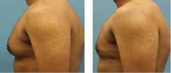 6-Male-breast-reduction-atlanta-alpharetta-georgia-ga