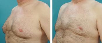7-Male-breast-reduction-atlanta-alpharetta-georgia-ga