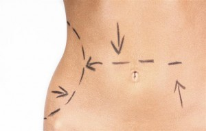 tummy tuck in atlanta ga