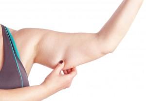 Atlanta-Arm-Lift-Surgery