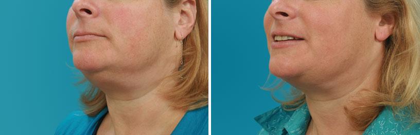 neck liposuction atlanta georgia