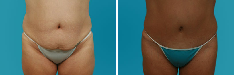 abdominoplasty photos