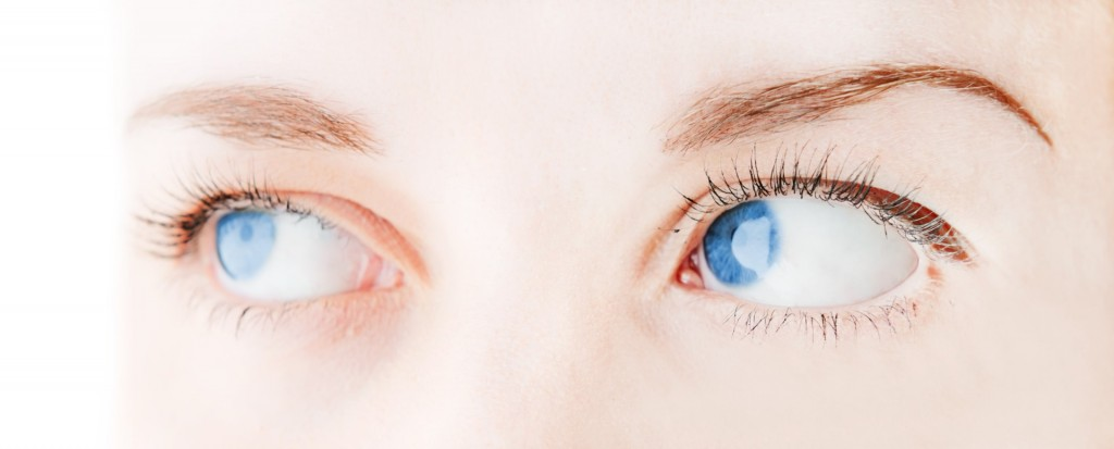 Tips for Patients Considering Eyelid Surgery