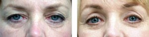 eyelid surgery in atlanta alpharetta ga