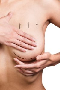 Ask Dr. Elliott What is the Difference Between a Breast Reduction and Breast Lift