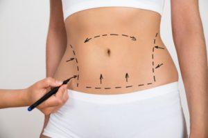 types-of-tummy-tucks-in-atlanta-and-alpharetta-ga
