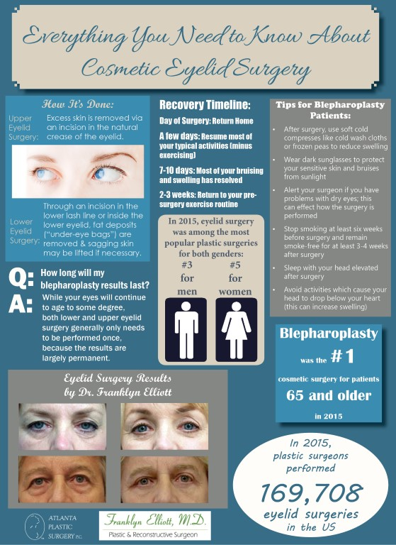 01.25.17 Everything You Need to Know about Eyelid Surgery